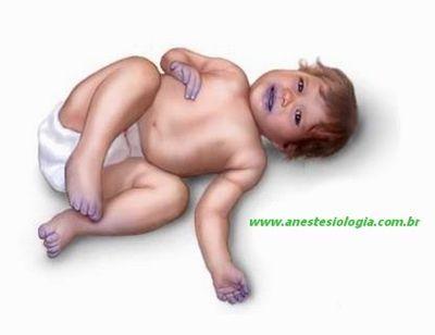 enfermedad de los niños azules